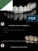 Coronas Metal-cerámica vs