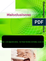 maloclusiones-100609000721-phpapp02[1]
