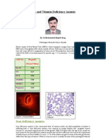Iron and Vitamin Deficiency Anemia by dr mohd mujeeb