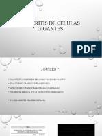 Arteritis de células gigantes
