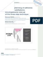 Treatment Planning of Adhesive Additive Rehabilitations- The Progressive Wax-up of the Three-step Technique