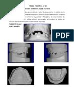 tarea ortodoncia analisis de modelos