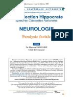 Paralysie faciale