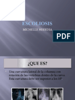 escoliosis