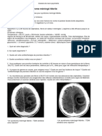 Dossier 1 de neurologie ECN