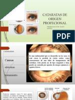 CATARATAS DE ORIGEN PROFECIONAL
