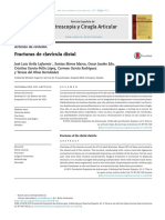 Fracturas de Clavicula Distal