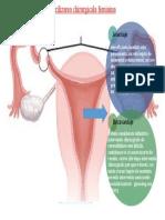 Sterilizarea chirurgicala feminina