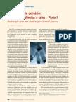 Tracionamento dentário mitos, coincidências e fatos  Parte I