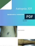 AUTOPSIA 325 ADENOCARCINOMA PULMON (1)