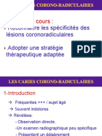 Les Caries Coronoradiculaires