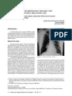 Edema Pulmonar de Reexpansao Tratado Com Ventilaca