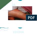 EDEMA 1