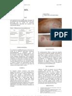 fitofotodermatosis