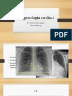 Estudios de Diagnóstico Por La Imagen Cardíacos