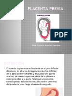 Placenta Previa, Dppni, Accretismo
