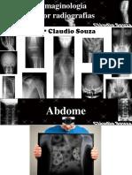 Imaginologia Por Radiografias Abdome Prof Claudio Souza ATUALIZADA EM 05 2012