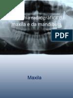 maxila-130811112850-phpapp02