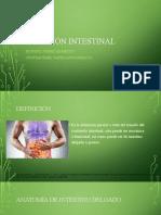 Obstruccion intestinal 2