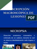 descripcion-20lesiones-necropsia-140110154639-phpapp02