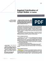 EggShell calcification of the lyph nodes -an update