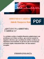 Arritmia cardíaca Julieth