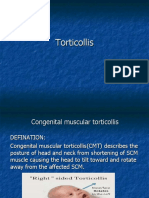 6. Torticollis