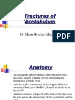 Fractures of Acetabulum