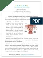 Fibromul uterin - Tratament in Medicina Traditionala