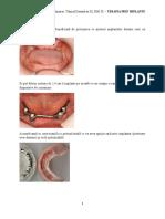 Chirugie OMF - Turcu Ovidiu