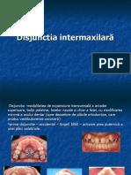 disjuncția maxilară1