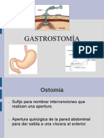 gastrostoma-140225210442-phpapp01