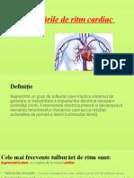Tulburările de ritm cardiac^