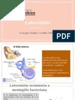 Laberinitis
