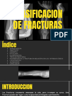 clasificacion de fracturas-convertido