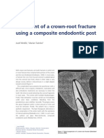 Treatment of a Crown-root Fracture