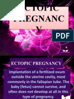 Ectopic Pregnancy&Hmole