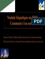 IRM Nodule Hépatique