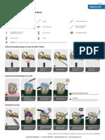 FR-Cementation-d-un-inlay-en-Prettau-Anterior-web