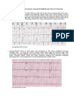 Soal pretest EKG patologis