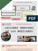 Lesiones Benignas de Los Maxilares - Radiologia - Grupo f