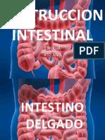 Obstruccion Intestinal Delgado-grueso