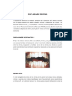 DISPLASIA DE DENTINA