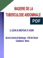 Rx de la TBC abdominale 2