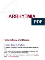 Arrhythmia power point