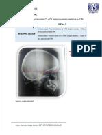 cefalometria-delaire