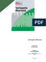 arteriopatia_obliteranta