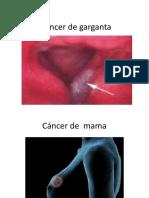 El cáncer de garganta