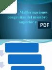 Malformaciones congenitas del mienbro superior y mano