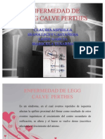 ENFERMEDAD_DE_LEGG-CALVE-PERTHES
